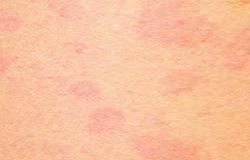 Solar Urticaria.jpg