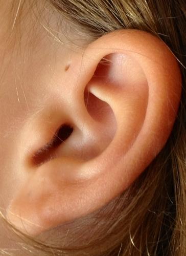 logans-ear.jpg