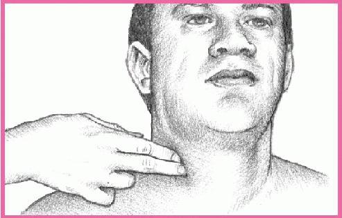 палпиране на артерия каротис.jpg