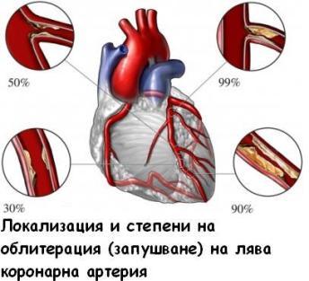 infarkt na miokarda1.JPG