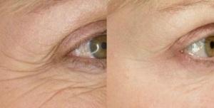 eye-wrinkles.jpg