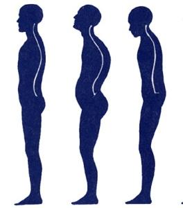 How_to_fix_posture.jpg