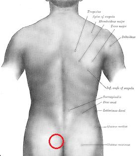 болки в гърба.png