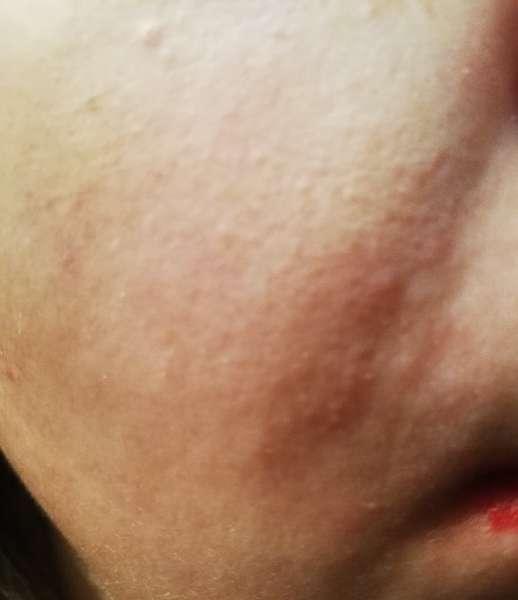 rozacea_alergia.jpg