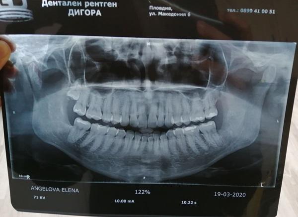 рентгенова снимка на зъбите.jpg