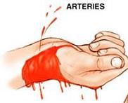 Артериално  кървене.JPG