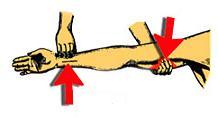 Притискане на артериите на ръката.JPG
